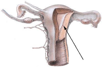 fibromer i livmoderen eva Harlou bryster