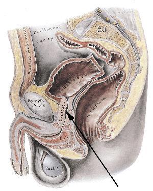 forstørret prostata alternativ behandling