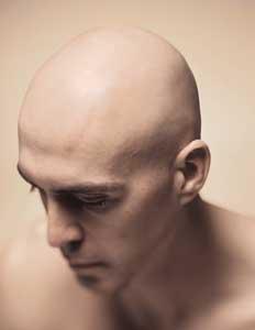 tynt hår på toppen av hodet